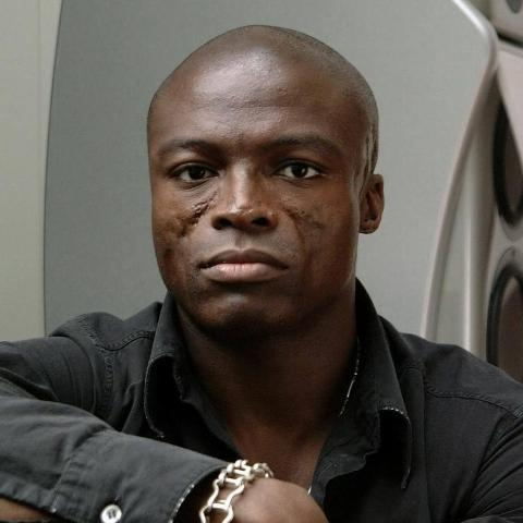 After Years Of Stories, Seal Comes Clean About The Origins Of His Facial Scarring